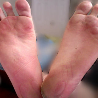 friction_blisters_on_human_foot